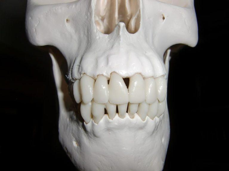 Dlaczego leczenie zębów to sprawa istotna dla całego organizmu?