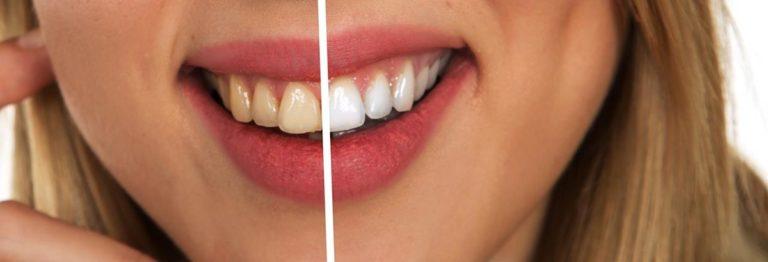 Efektywne leczenie krzywych zębów i zgryzu przy pomocy specjalnych aparatów